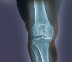 ozone relieves knee pain